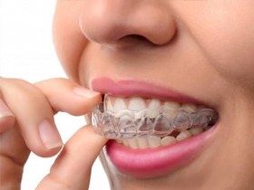 person removing a clear aligner