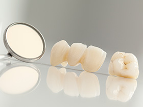 Dental crown and bridge on tabletop